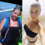 לפני אחרי הסרת שומן